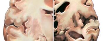 alzheimer-brain-versus-healthy-brain-JENNA-ORKIN